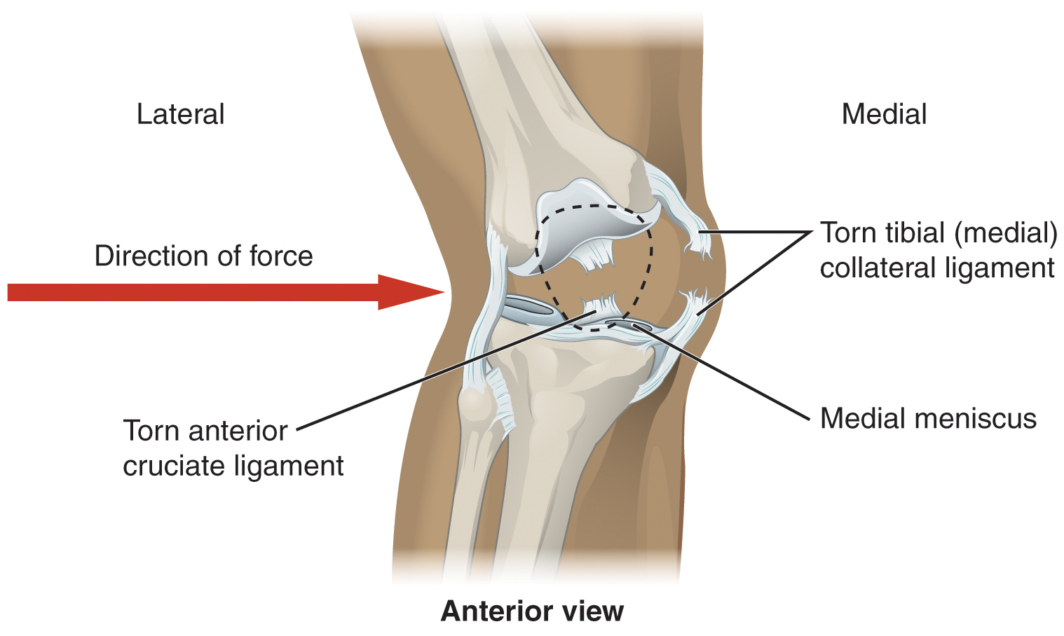 Workouts to prevent MCL Injuries - ACL Brace ACL Brace